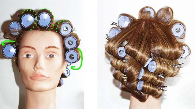 Болезнь волосам облысение