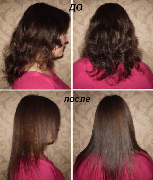 Реально восстановить волосы после сильного выпадения